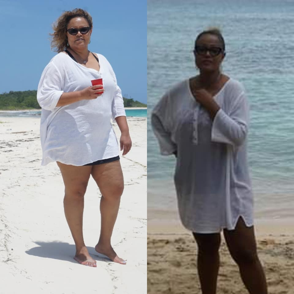 Before and During My Keto Journey