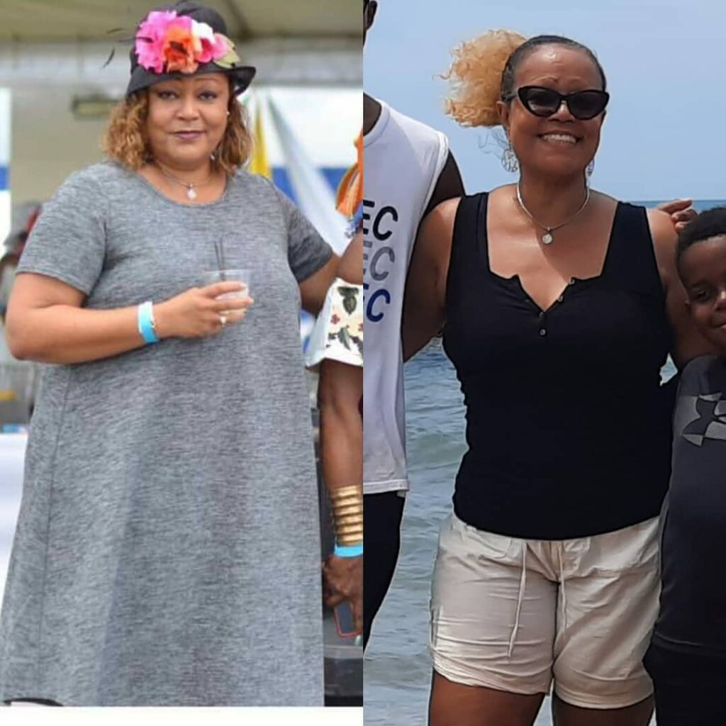 Before and after on the keto diet